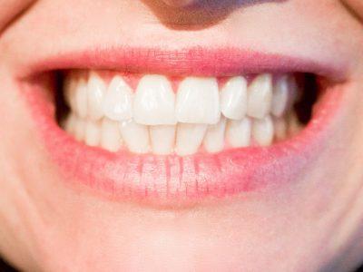 Rancho Cucamonga CA Orthodontist
